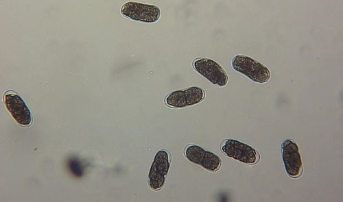 Figure 3. Young eggs of the grass root-knot nematode, Meloidogyne graminis Whitehead Cells are starting to divide.