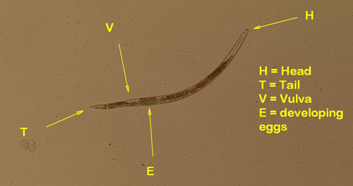 Figure 1. An amaryllis lesion nematode. The vulva is located about 78% of the nematode's body length from the anterior.