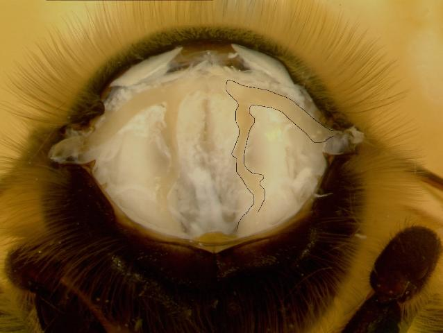 Figure 8. The honey bee thorax after the entire collar has been removed. The mesothoracic tracheae are completely visible and are in the shape of an inverted letter