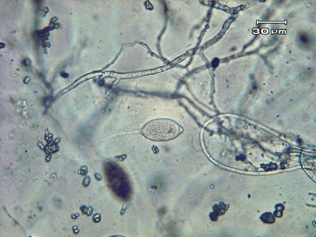 Figure 12.Lemon-shaped sporangium and thread-like mycelia of Phytophthora capsici.
