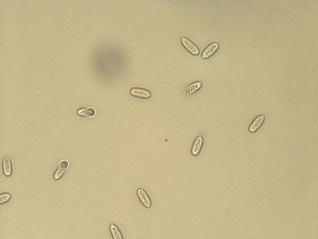 Figure 10. Conidia of C. orbiculare.
