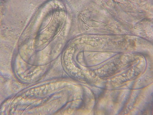 Figure 4. Mature eggs of the grass root-knot nematode, Meloidogyne graminis Whitehead. The second-stage juveniles (J2) can be seen coiled up inside indicating the egg is getting ready to hatch.