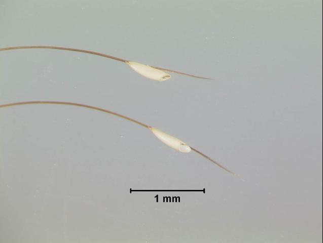 Figure 4. Close-up of horse bot fly eggs.