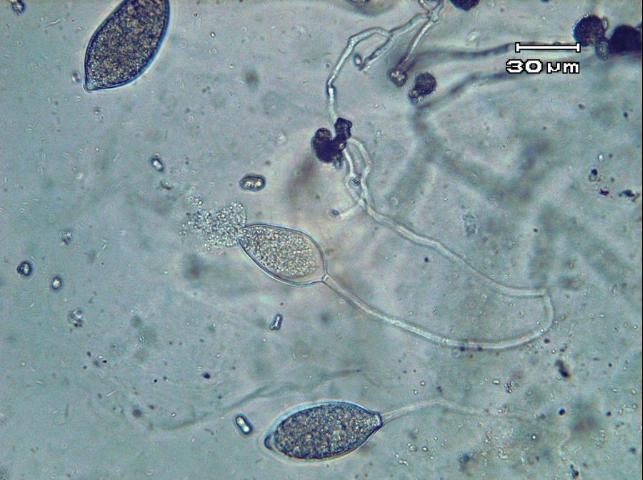 Figure 13.Phytophthora capsici sporangium releasing zoospores.